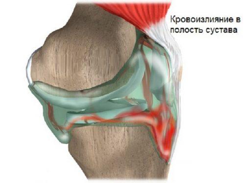 Образование гемартроза коленного сустава