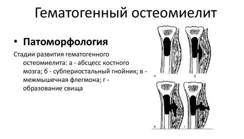 Гематогенный остеомиелит кости