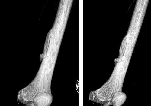 Гетеропластическая остеома