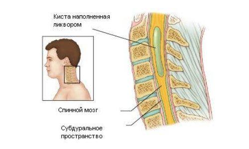 Возникновение гидромиелии