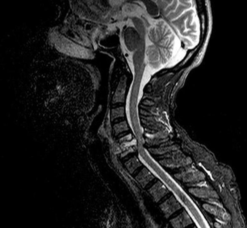 Грыжа шейного отдела позвоночника на МРТ