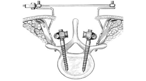 Хирургическое лечение ретролистеза