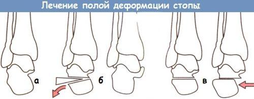 Хирургия конской стопы