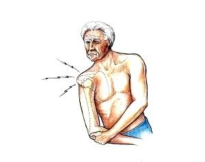 Хрусты и щелчки в плече