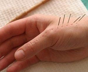 Иглоукалывание пальцев рук при артрите