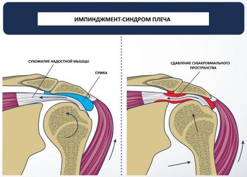 Импинджмент–синдром плеча