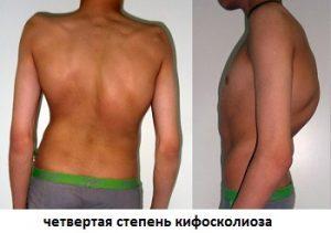 Спина при кифосколиозе 4 степени
