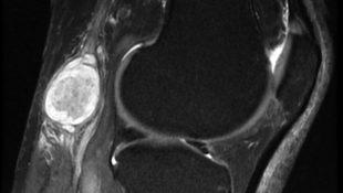 Диагностика патологии колена