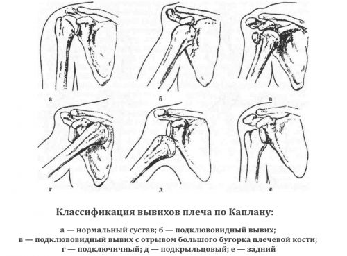 Классификация вывихов плеча по Каплану