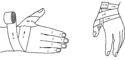 Колосовидная повязка на большой палец руки