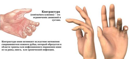 Контрактура или ограничение подвижности сустава