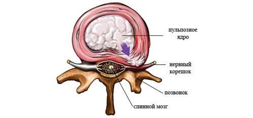 Люмбалгии из-за корешкового синдрома