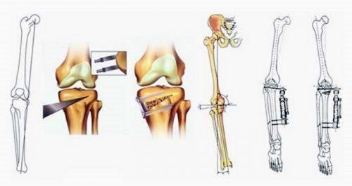 Коррегирующая остеотомия коленей
