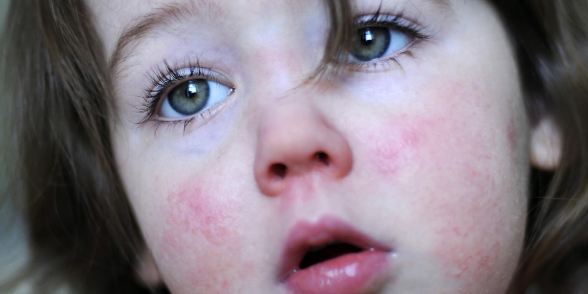 Сыпь при ОРВИ у ребенка