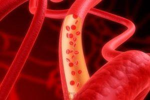 Улучшение кровообращения при подагре