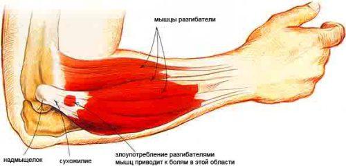 Латеральный внешний эпикондилит