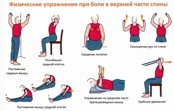 Лечебная гимнастика при боли вверху спины