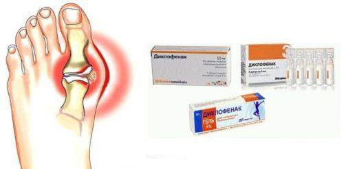 Лечение подагры Диклофенаком
