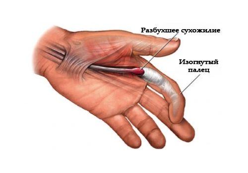 Лигаментит — воспаление связок