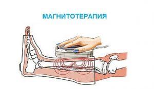 Магнитотерапия голеностопа