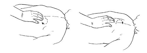 Массаж при сирингомиелии