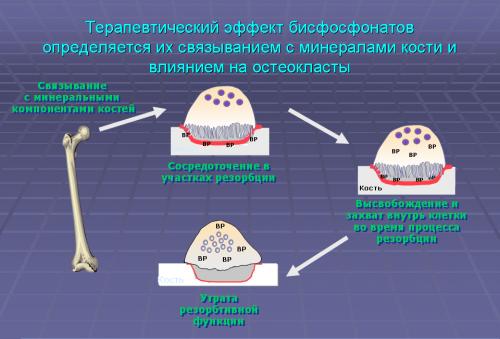 Механизм действия бисфосфонатов