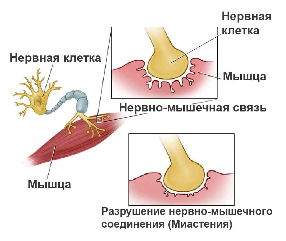 Миастения мышечных волокон