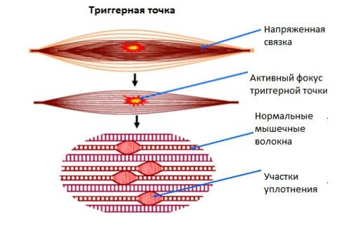 Миофасциальный болевой синдром связок и мышц