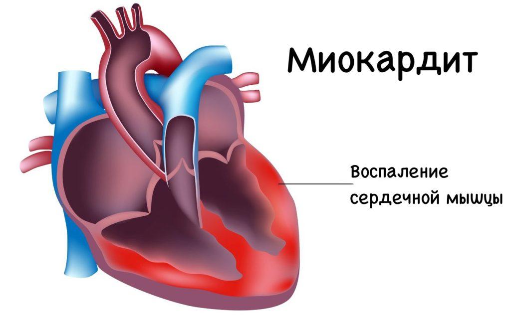 Осложнение на сердце после гриппа