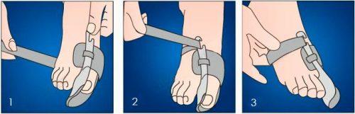 Надевание ночного бандажа при вальгусной деформации