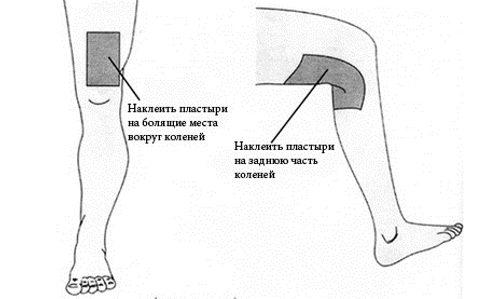 Наложение горчичников на коленный сустав