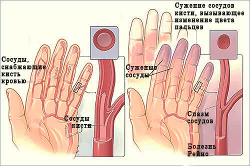 Нарушение кровотока кисти
