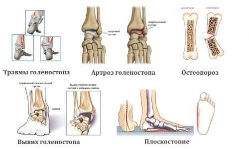 Назначение рентгена голеностопа