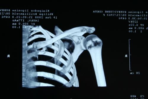 Некроз плечевой головки кости на КТ