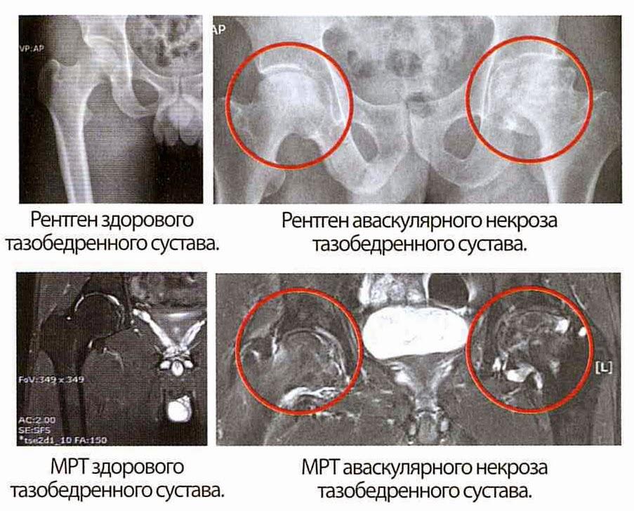 Некроз тазобедренного сустава на рентген снимке