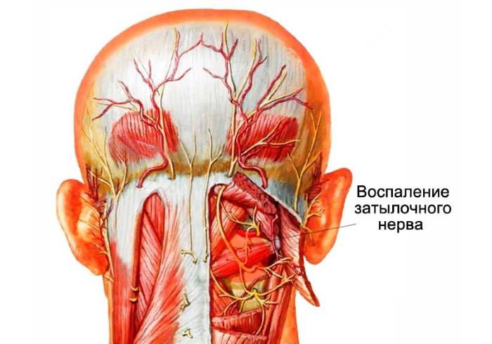 Невралгия или воспаление затылочного нерва