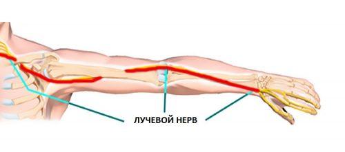 Возникновение неврита лучевого нерва