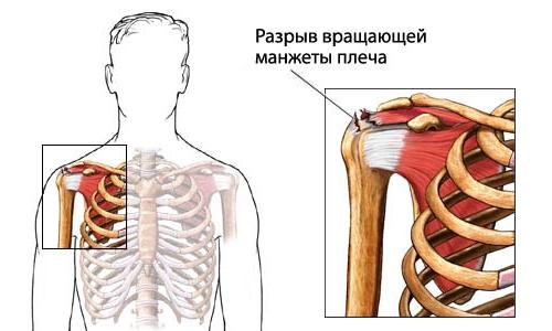 Образование разрыва манжеты плечевого сустава