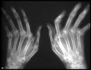 Олигоартрит на рентген снимке