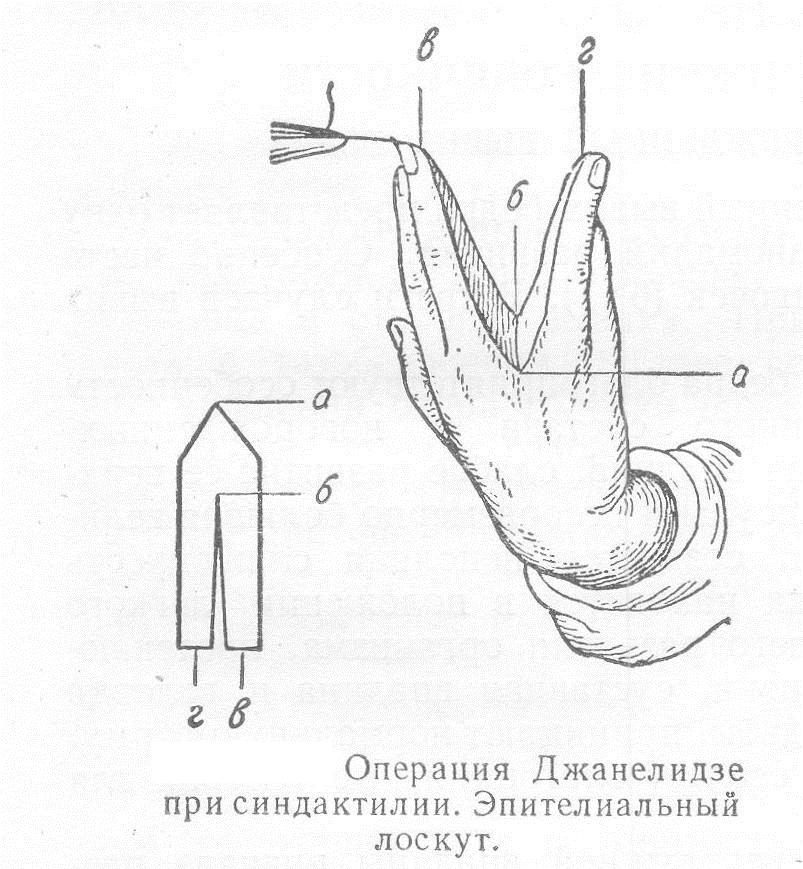 Операция Джанелидзе при синдактилии