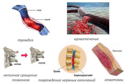 Частые осложнения после спондилодеза