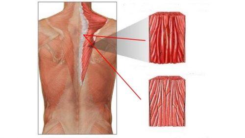 Схема миозита спинных мышц