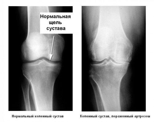Остеоартроз колена на рентген снимке