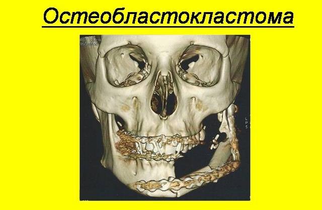 Опухоль остеобластокластома кости
