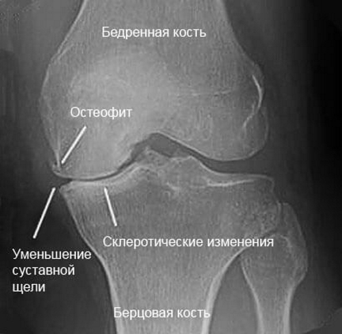 Остеофиты колена на рентген снимке