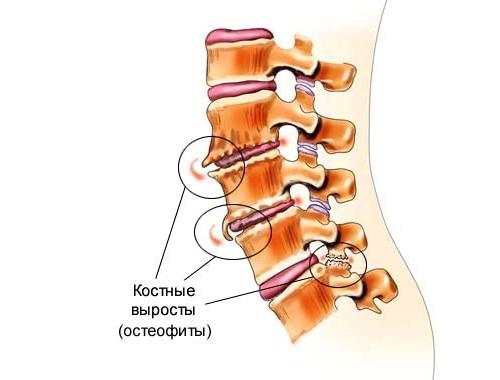 Появление остеофитов поясничного отдела позвоночника