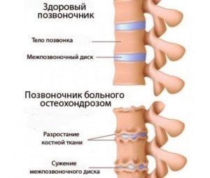 Здоровый позвоночник и пораженный остеохондрозом