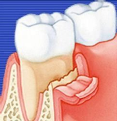 Остеомиелит лунки зуба