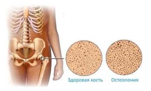 Остеопения тазобедренного сустава