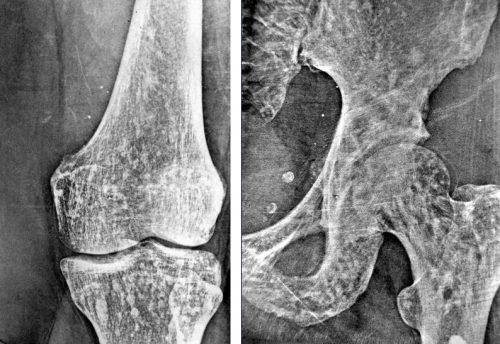 Остеопойкилия костей